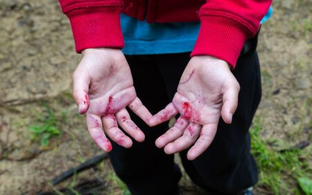 Young boys dirty from handpicked in forest blackberries juice hands. Horizontal crop Stock Photo