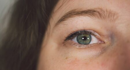 Woman with under eye bag. Puffy eye of girl showing eyes bags Imagens