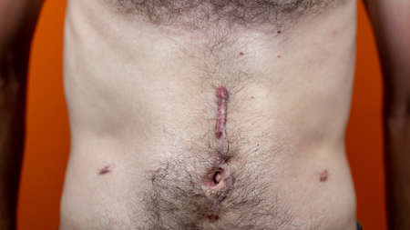 Close up of man's naked belly with scars Stok Fotoğraf