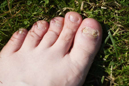 Onychomycosis. Fungal infection of nails of young mans feet Stock fotó
