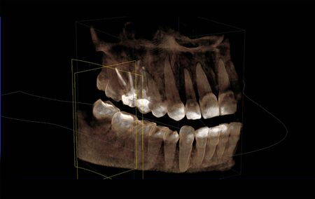 3D visualization of a computer tomogram of the dentition