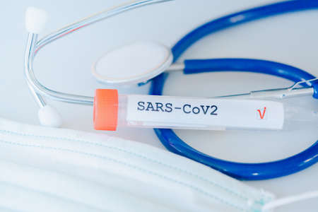 Coronavirus test and nd stethoscope. Tube with a SARS-CoV-2 virus test label on laboratory table. COVID-19 test concept. Stock fotó