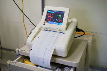Cardiotocograph recording fetal heart rate and uterine contractions