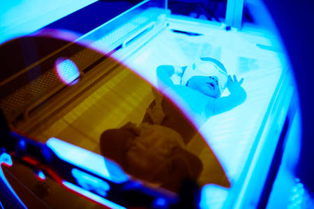 Newborn baby girl receiving phototherapy for jaundice at the maternity hospital Stock Photo