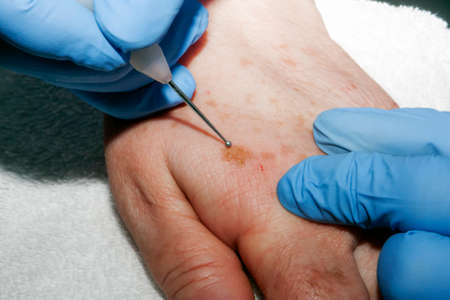 surgical removal: Micro surgery: Removing skin diseases