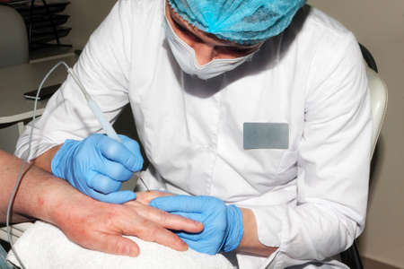Microsurgery: Doctor removes skin diseases
