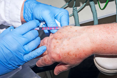 surgical removal: Microsurgery : Dermatologist doctor performs performs local anesthesia in hand to remove dermatological diseases Stock Photo