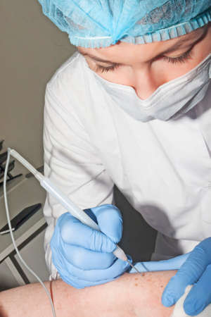 Dermatologist surgeon removes skin diseases with electrocoagulator