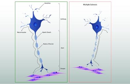 Vector estructura de esquema de una neurona t�pica