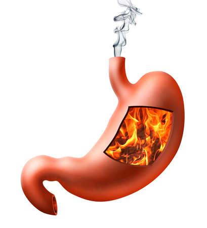желудок: Иллюстрация человеческого желудка с изжогой