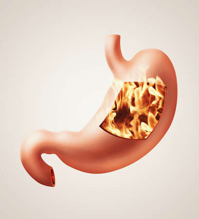 oesophagus: Photorealistic illustration of human stomach with heartburn disease