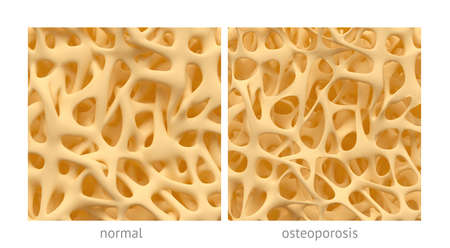 bone anatomy: Bone spongy structure close-ups, normal and with osteoporosis