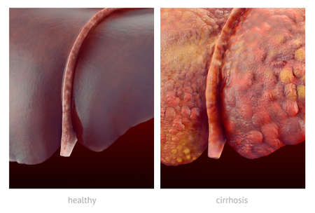 Realistic illustration of comparsion of healthy and sick (cirrhosis) human livers Фото со стока - 40984897