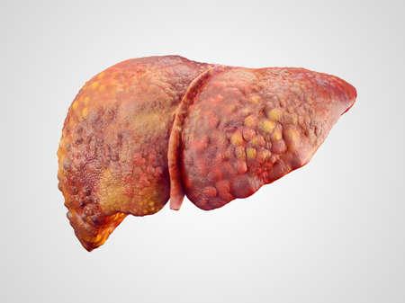 higado humano: Ilustración realista de la cirrosis del hígado humano aislado en blanco