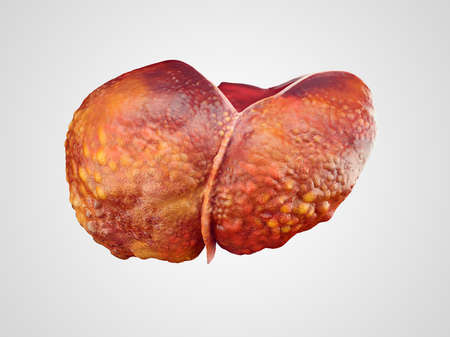 dipsomania: Realistic illustration of cirrhosis of human liver isolated on white Stock Photo