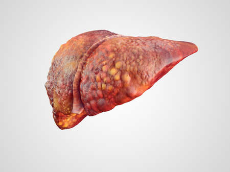 Realistic illustration of cirrhosis of human liver isolated on white Reklamní fotografie - 40984900