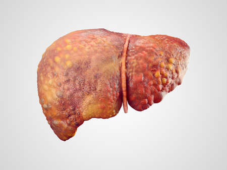Realistic illustration of cirrhosis of human liver isolated on white Reklamní fotografie