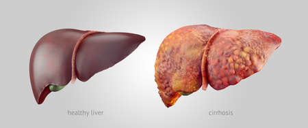 higado humano: Ilustración realista de comparsion de sanos y enfermos (cirrosis) hígados humanos