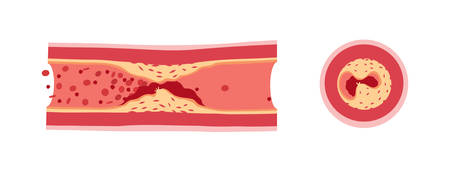 blood flow: Cross section of vessel with atherosclerosis and atherotrombosis vector illustration Illustration