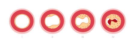 Red blood cell: etapas aterosclerosis en las arterias causadas por la placa de colesterol