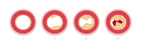 Atherosclerosis stages in artery caused by cholesterol plaque Illustration