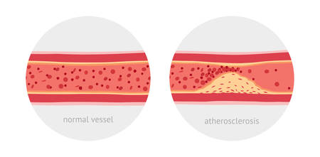 atherosclerosis: Healthy and atherosclerosis vessels with blood cells vector illustration