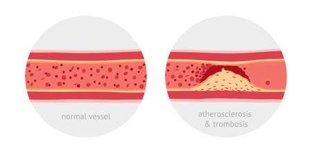 blood flow: Healthy and atherosclerosis and atherotrombosis vessels with blood cells vector illustration Illustration