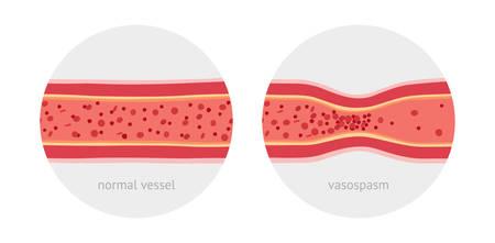 vasos sanguineos: espasmo vasos anatómicos sanos y enfermos con la ilustración de células de la sangre del vector