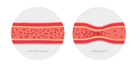 Healthy and sick spasm anatomical vessels with blood cells vector illustration