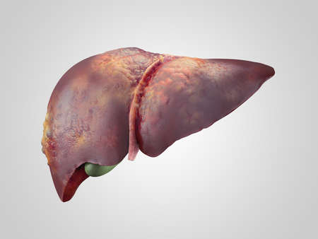 Iillustration of sick human liver with cancer isolated