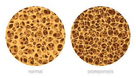 Bone spongy structure vector illustration, normal and with osteoporosis