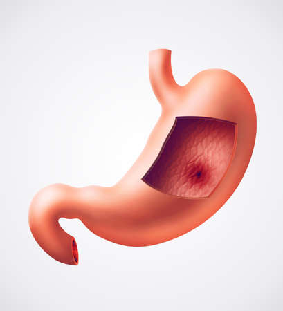 Photorealistic illustration of human stomach with gastric (ulcer) disease