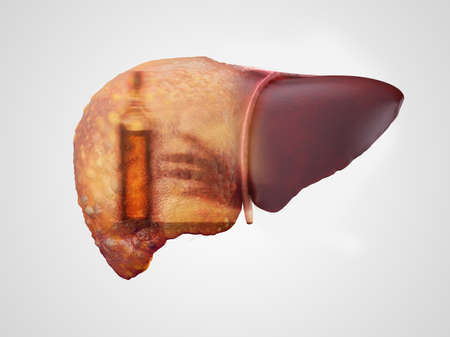 Liver cirrhosis and alcohol addiction double exposure 3d illustration isolated on white