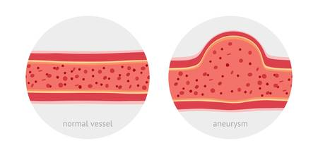 Healthy vessel and sick vessel with aneurysm with blood cells flat vector illustration Illustration