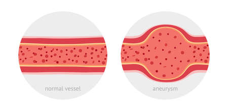Healthy vessel and sick vessel with aneurysm with blood cells flat vector illustration 일러스트