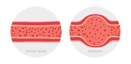 Vaso sano y vaso enfermo con aneurisma con ilustración de vector plano de células sanguíneas