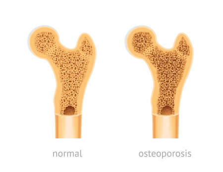 Vector illustration of human Bone, healthy and with osteoporosis Vetores