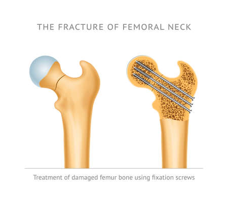 The fracture of femoral neck. Treatment of damaged femur bone neck using fixation screws