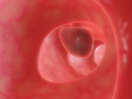 bowel: big bowel polyp