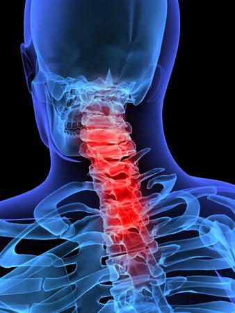 carers: skeletal neck