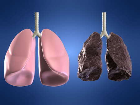 health and bad lung Stock Photo - 748597