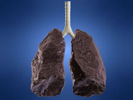 liver cancer: bad lung