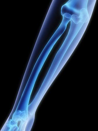 luxacion: brazo humano