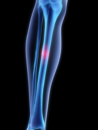 luxacion: pierna quebrada