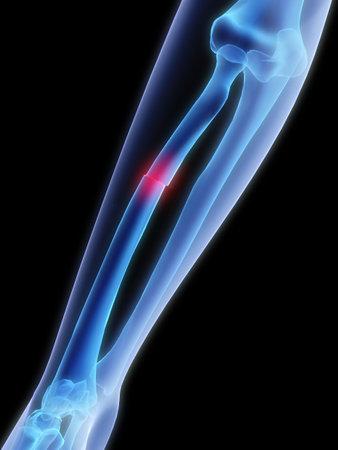 osteoporosis: brazo roto  Foto de archivo