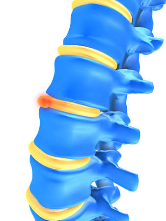 herniated: slipped disc Stock Photo