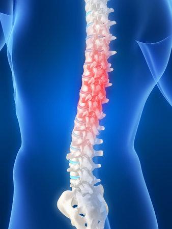 paraplegico: Dolor de espalda