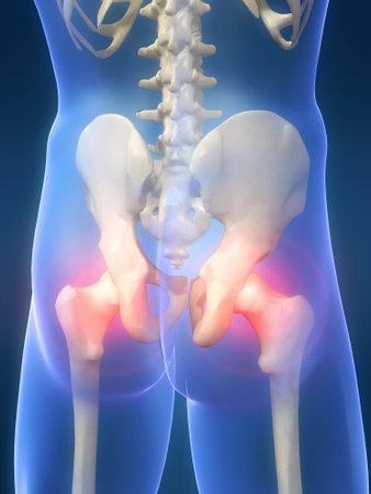 traumatology: hip