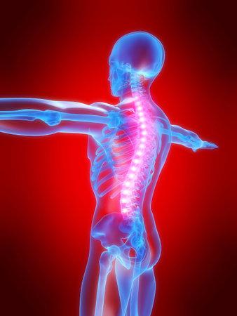 backache: backache illustration