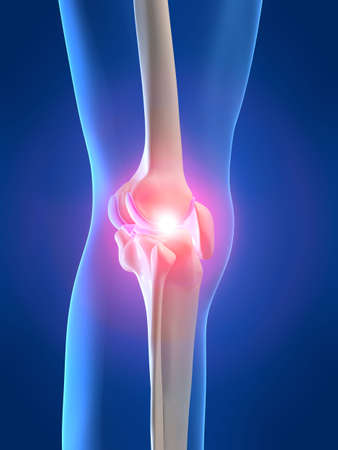 joint: skeletal knee with pain Stock Photo